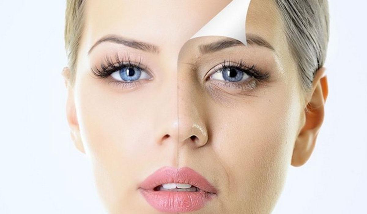 صورة علاج الهالات السوداء تحت العين طبيا , تخلصي من الهالات السوداء الي الابد
