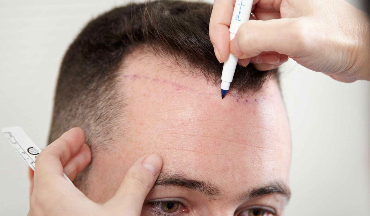 صور فوائد زراعة الشعر , تعرف علي الحالات التي يتم فيها اللجوء الي زراعه الشعر وماهي فوائدها