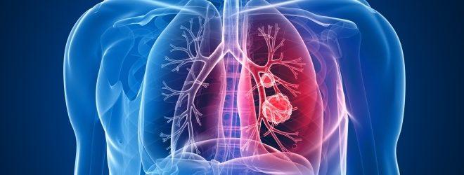 صور اعراض امراض الرئة , هل مرض الرئه له سبب معين