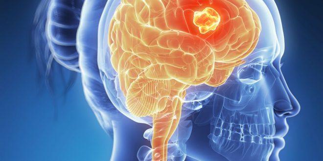 صور اعراض السرطان في الراس , هل تورم الراس دليل علي السرطان
