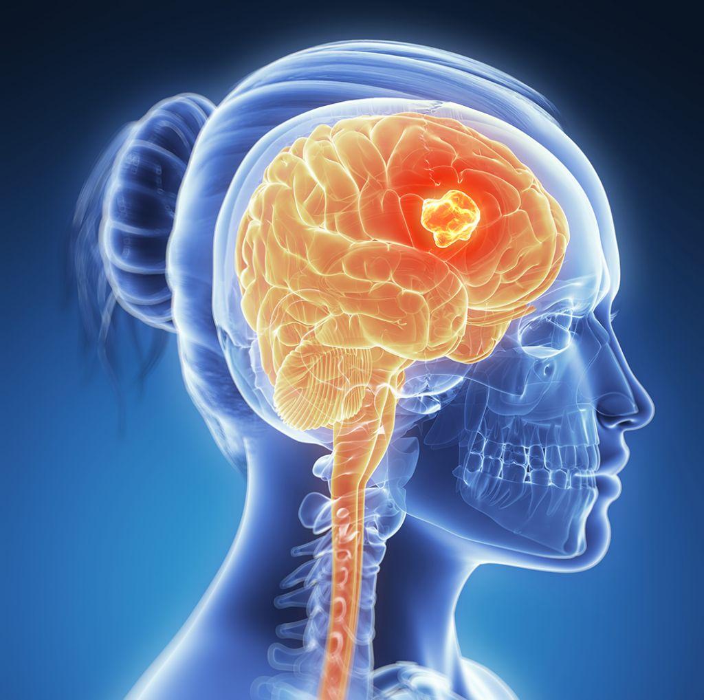 صورة اعراض السرطان في الراس , هل تورم الراس دليل علي السرطان