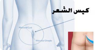 علاج الناسور العصعصي بالعسل , علاج الناسور طبيعيا