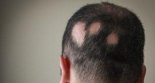 علاج الثعلبه وتساقط الشعر , اسباب ظهور الثعلبه وابسط طرق علاجها