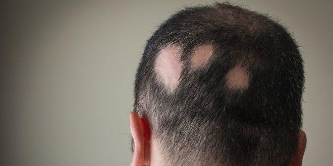 صور علاج الثعلبه وتساقط الشعر , اسباب ظهور الثعلبه وابسط طرق علاجها