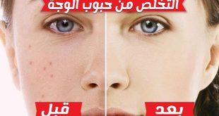 صورة التخلص من الحبوب في الوجه , كيفية علاج الحبوب و البثور نهائيا