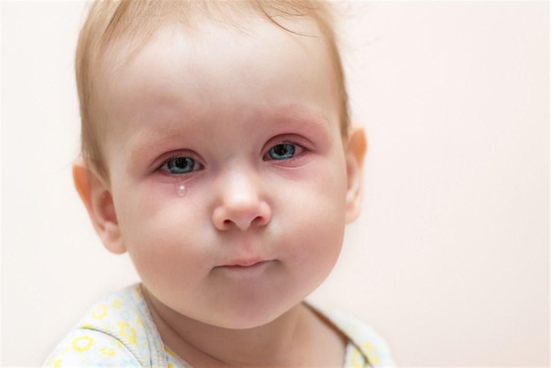صورة احمرار العين عند الاطفال حديثي الولادة , اسباب التهبات العين عند المولودين حديثا و علاجها