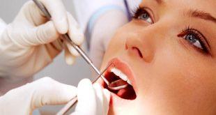 علاج الاسنان في تركيا , طرق تجميل الاسنان بتركيا