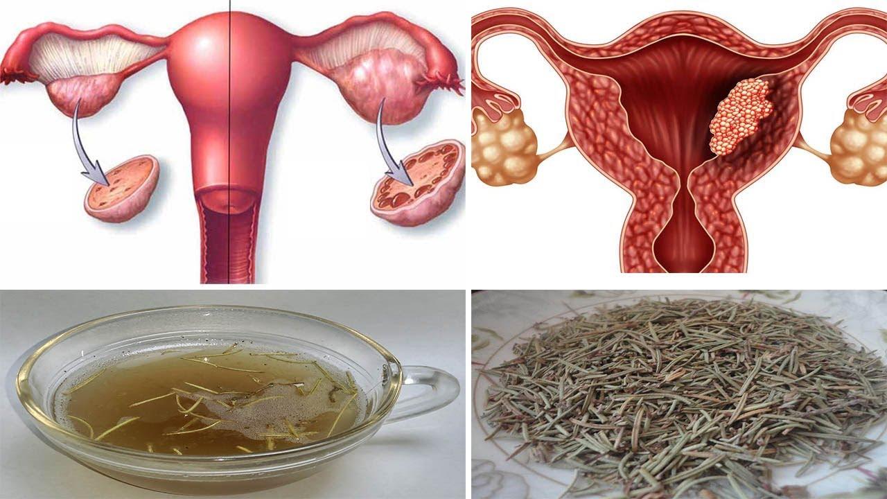 صورة علاج كيس في الرحم بالاعشاب , كيفية استخدام الاعشاب كعلاج لبعض الامراض