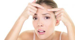 اسباب البثور في الوجه , حافظي على بشرتك وتعرفي على اسباب البثور