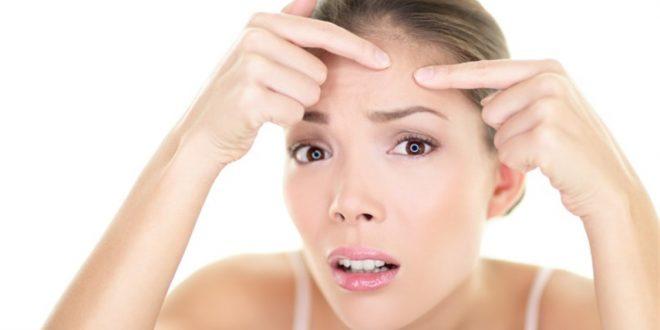 صور اسباب البثور في الوجه , حافظي على بشرتك وتعرفي على اسباب البثور