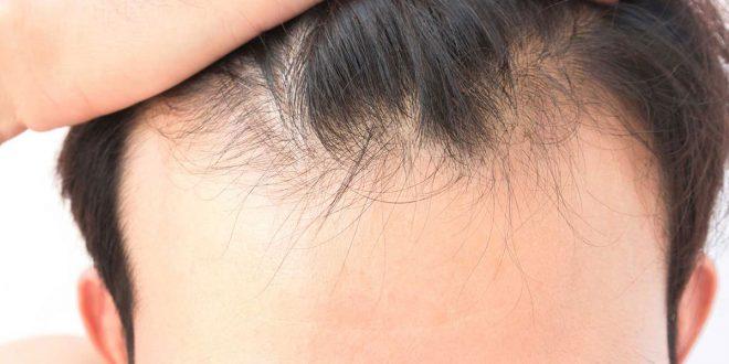 صورة ما هي اسباب سقوط الشعر , تساقط الشعر عند الفتيات