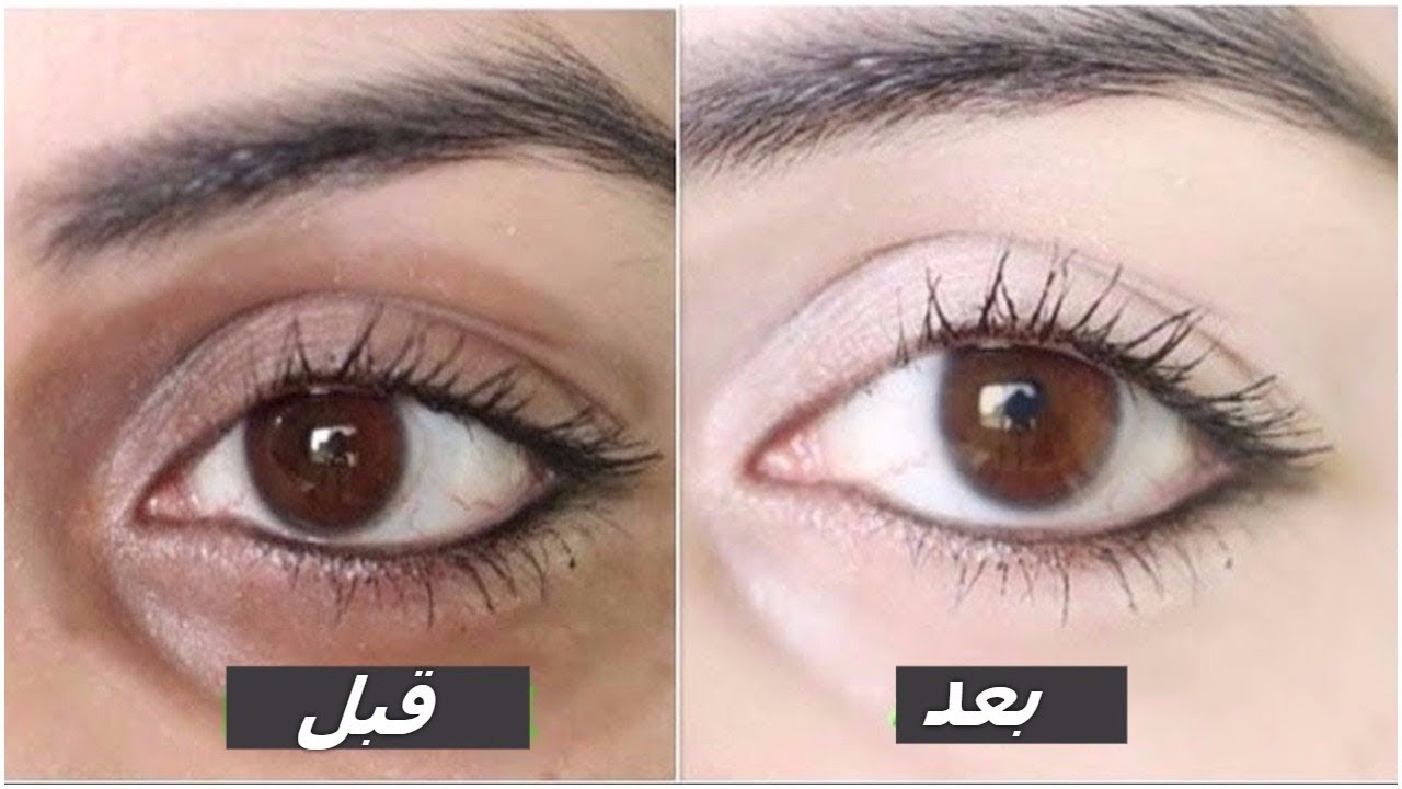 صورة علاج سواد تحت العين مجرب , حل سريع للتخلص من الهالات السوداء