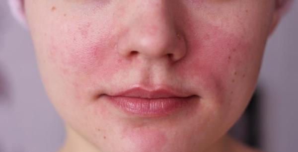 صورة علاج التهاب البشرة الدهنية , وصفات للبشره الدهنيه
