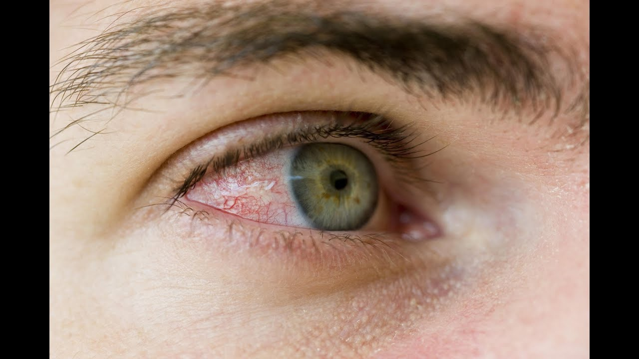 صورة علاج اجهاد العين بالاعشاب , افضل الحلول للعيون المجهدة
