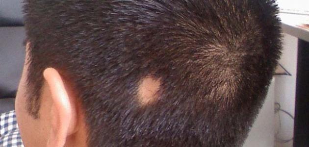 صورة ثعلبة الشعر عند الاطفال , تعرف علي مرض الثلعبه