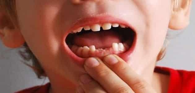صورة وقوع الاسنان في الحلم , الاسنان في المنام