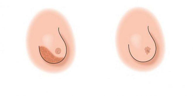 صورة بالصور شكل الثدي المصاب بالسرطان , تعرفي على شكل الثدي عند الاصابة بالسرطان بالصور