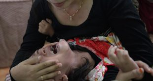 صورة كيف ختان البنات , معلومات عن ختان البنات 1772 3 310x165