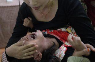 صورة كيف ختان البنات , معلومات عن ختان البنات