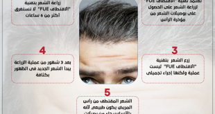 اسعار زراعة الشعر , كم يتكلف زراعه الشعر