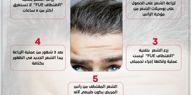 صورة اسعار زراعة الشعر , كم يتكلف زراعه الشعر