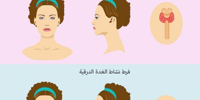 صورة اعراض زيادة الغدة الدرقية , زيادة افراز الغدة الدرقيه واعراضها