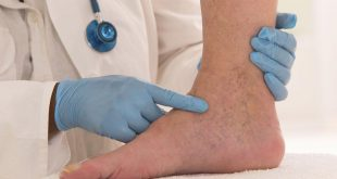 صورة علاج الشعيرات الدموية في الساق بالليمون , الطب البديل والسحري لعلاج الشعيرات الدموية