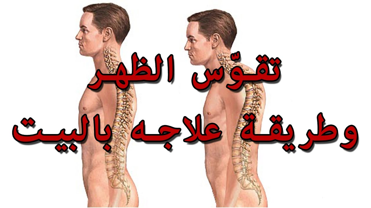 صورة علاج تقوس الظهر , تقوس الظهر اسبابه وعلاجه