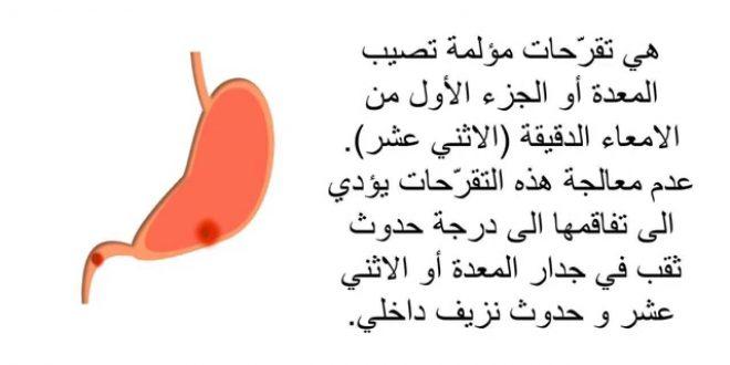 صورة اعراض التهاب المعدة والاثنى عشر , قبل فوات الاوان هذه اعراض التهابات المعدة والاثنى عشر