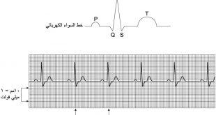 صورة رسم القلب الطبيعى , ما هي القراءة الطبيعية لرسم القلب؟