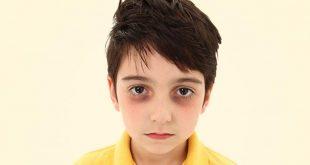 صورة اسباب شحوب الوجه والهالات السوداء عند الاطفال , سبب اصفرار وجه ابنك