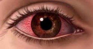 صورة ظهور العيون فى المنام , تفسير حلم العين