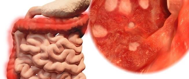 صورة الاعشاب ودورها في علاج تقرح القولون ,علاج القولون التقرحي بالاعشاب