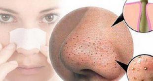 صورة وداعا للرؤس السودا ,كيفية ازالة البقع السوداء من الوجه