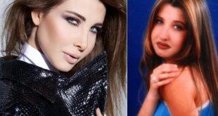 صور الممثلين قبل وبعد عملية التجميل